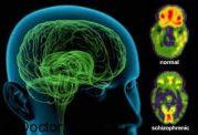 مقاله ای در رابطه با اسکیزوفرنی
