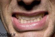 چرا دندانهایمان را به هم می سائیم