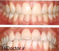 مراحل  جرم گیری دندان در محل زندگی شما