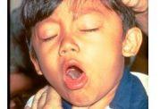 سرفه شدید و بیماری سیاه سرفه