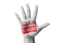 چه ارتباطی میان تغذیه،حرکات ورزشی و سرطان پروستات وجود دارد؟