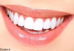 10 نکته برای سالم نگه داشتن دندان ها