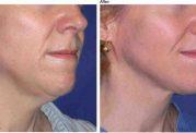 شیوه های اصولی  برای سفت شدن پوست