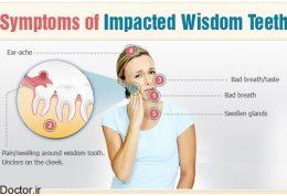 اهمیت رسیدگی به برخی دندان های عقل