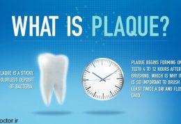 توصیه دندانپزشکی برای ایجاد پلاک دندان