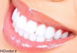 معرفی دوستان و دشمنان سلامتی دندان هایتان