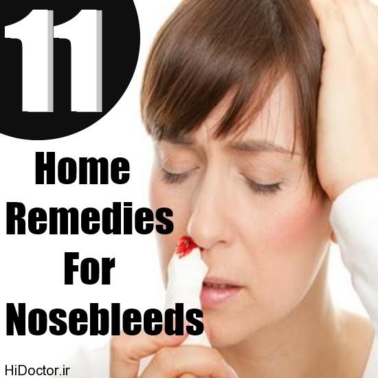علل و عوامل خونریزی از سیستم بویایی