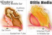 درمان نوین و کاربردی برای عفونت در سیستم شنوایی