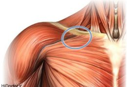 کشیدگی عضله سینه ای