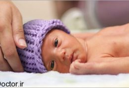 سوالات رایج در زمینه نوزاد نارس