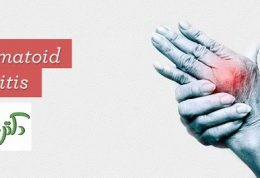 هر آنچه باید در مورد آرتریت روماتوئید بدانید