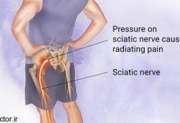 فقط با 4 ورزش از درد سیاتیک رها شوید