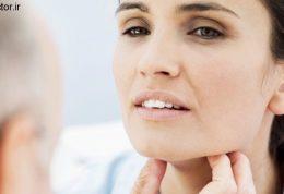 لیستی از انواع دردهای مزمن در گلو