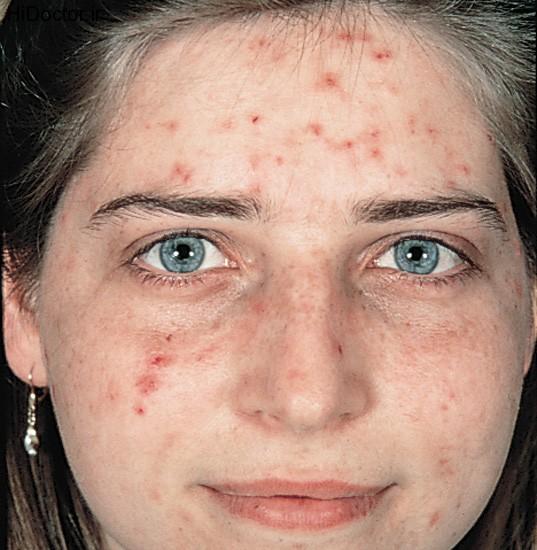 درمان جوش گرمی صورت
