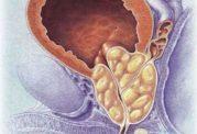 پروستات خوش خیم و بدخیم در مردان