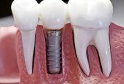 تصاویری از ایمپلنت دندان