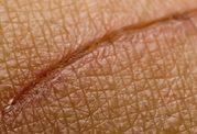 تحریک الکتریکی و درمان زخم در اشخاص مبتلا به دیابت