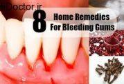 درمان های خانگی برای پیشگیری از خونریزی از لثه ها