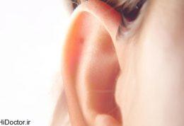 آسیب به عصب شنوایی و این بیماری ها