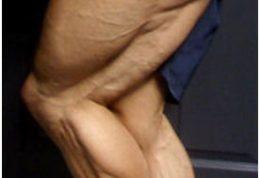 4 شیوه درمانی برای عضلات پشت پا