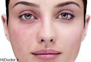 بیماری پوستی روزاسه - التهاب و قرمزی مزمن پوست صورت