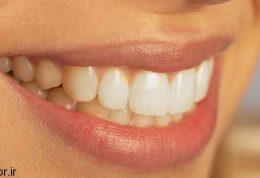 آبسه دندانی چیست و چه درمانی دارد؟