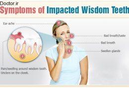 مهمترین اطلاعات لازم در مورد دندان عقل