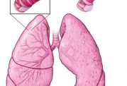 شرح مختصری راجع به  انواع درمانهای بیماری آسم