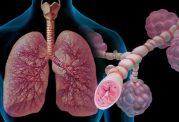 حساسیت و عوامل تحریک کننده آسم