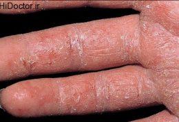 اگزما یا آماس خارش دار پوست