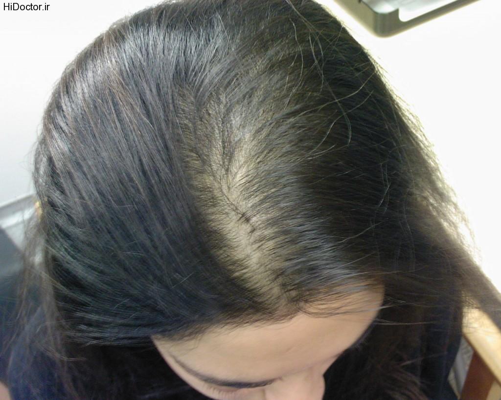 ریزش مو غیر طبیعی