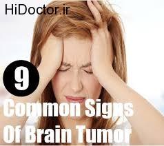 از علائم سرطان مغز در زنان