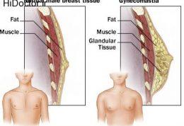 علائم و عوارض بیماری ژنیکوماستی