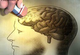 چگونه بیماری آلزایمر را از خود دور نگه دارید؟