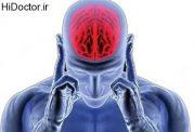 دانستنی هایی مهم در زمینه سکته مغز