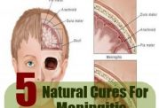 5 درمان طبیعی برای مننژیت