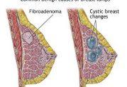 توده های بی خطر در سینه