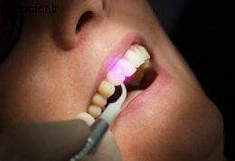 تصاویری از لیزر دندان پزشکی