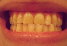 ساییدن دندان در زمان خوابیدن