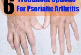 6  درمان  مختلف برای ورم مفاصل پسوریاتیک