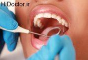 حد استاندارد مراجعه به دندانپزشک