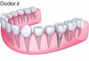 ایمپلنتهای دندانی و قیمت های هرکدام