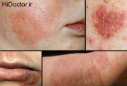 داروی توماسیتینیب اگزما را هم درمان می کند