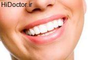 چگونه با کمترین هزینه دندان های خود را سفید کنیم؟