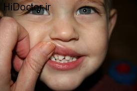 شکستگی در ناحیه دندانی در اطفال