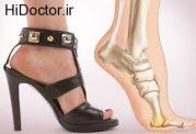 دشمنی کفش پاشنه بلند با سلامتی شما