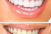 طبیعی و بی خطرترین راهها برای رفع زردی دندان