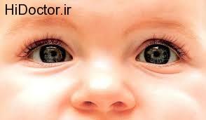 هشدار برای برخی نگاه های نوزادان