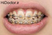 پوسیدگی دندان ها در حین ارتودنسی