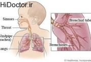 علت اکثر عارضه های تنفسی در طفال